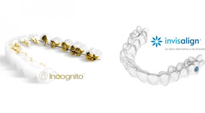 invisalign-vs-incognito